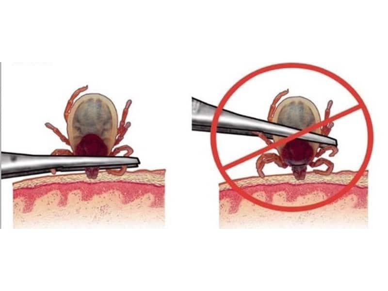 Изваждане на кърлеж с пинцета - Саниста вип