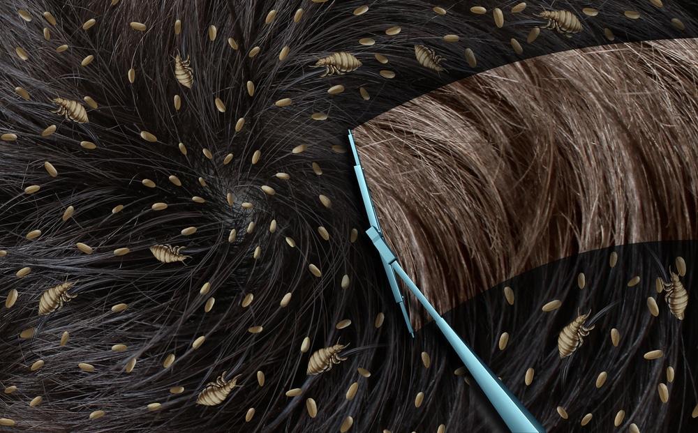 Въшки - на картинката е изобразена чиста коса и коса заразена с въшки.