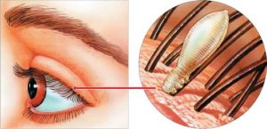 Въшки захванати за клепача на окото